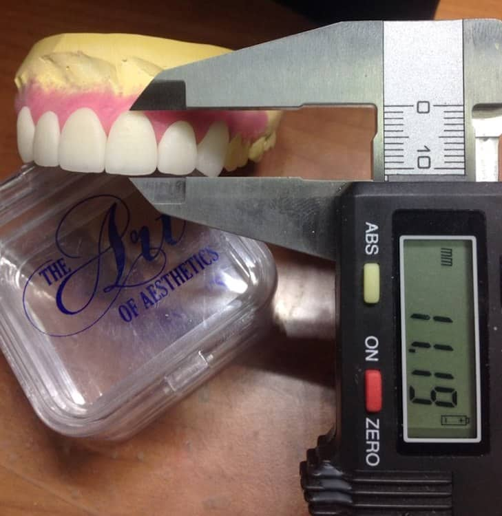 Consistency and Accuracy Dental Laboratory
