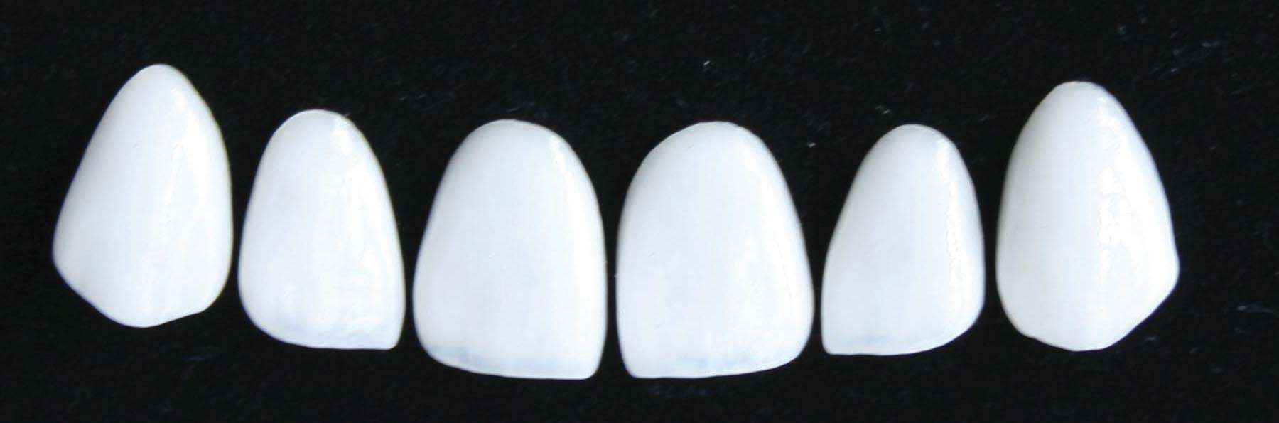 Cosmetic Feldspathic Veneers