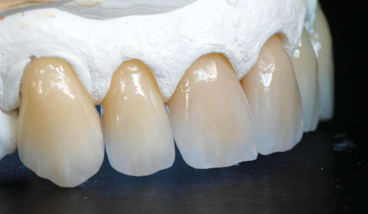 The Art Of Aesthetics Zirconia dental lab