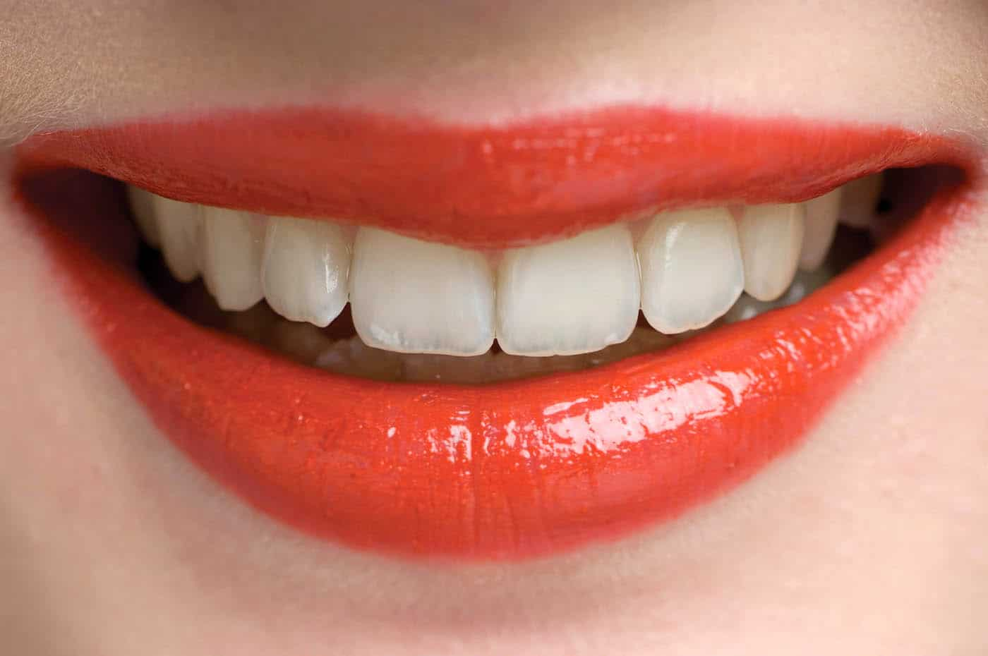 The Art Of Aesthetics Cosmetic Porcelain Veneers