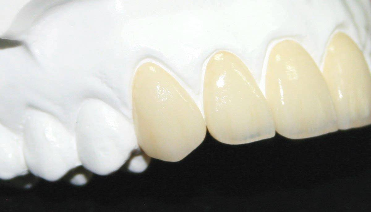The Art Of Aesthetics Crowns and Bridges Dental Laboratory