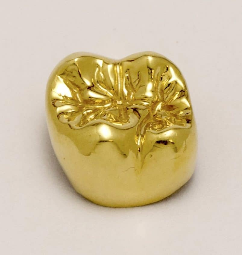 implant gold crown