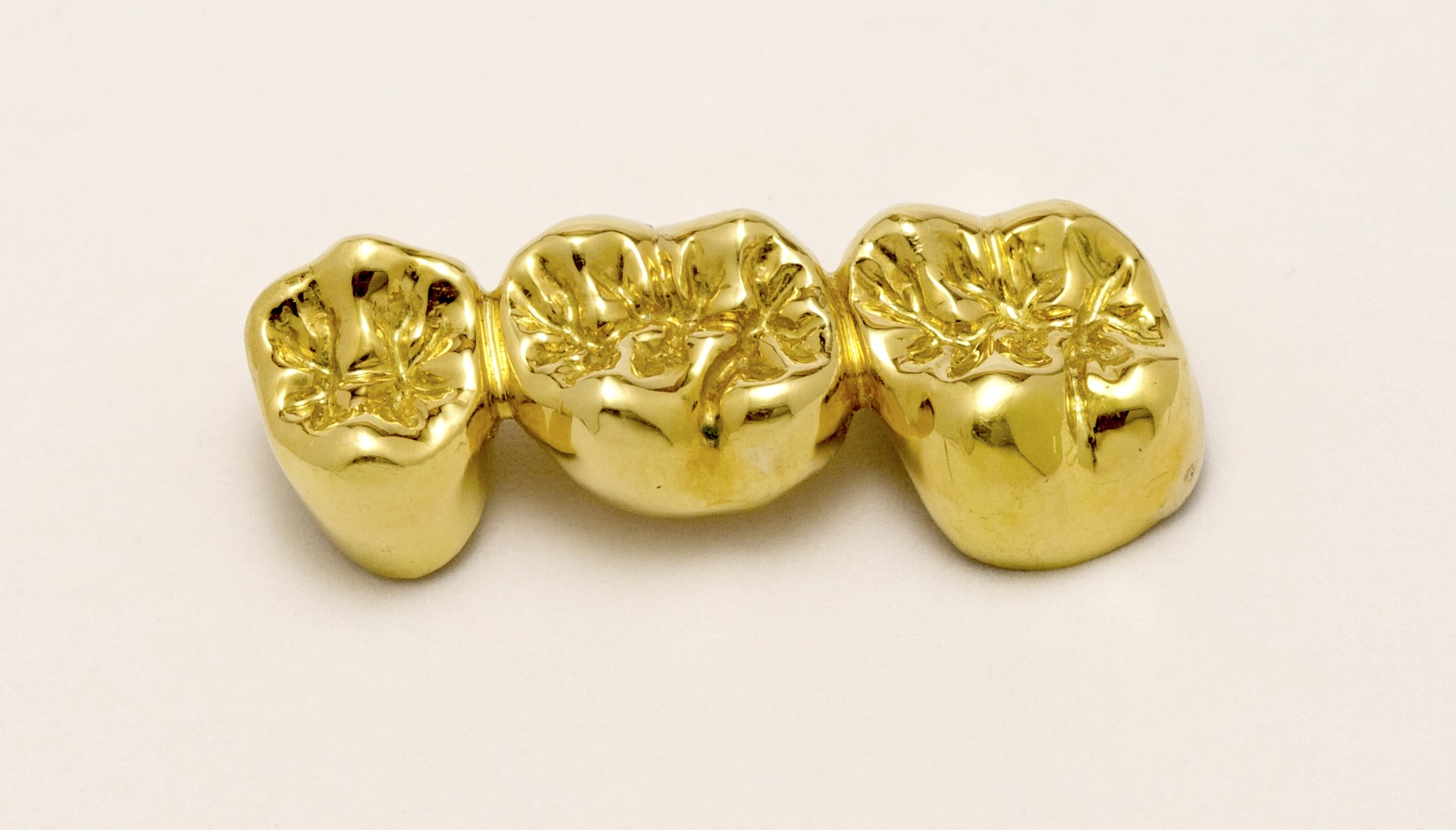 Dental Laboratory Full Gold Crown True Definition